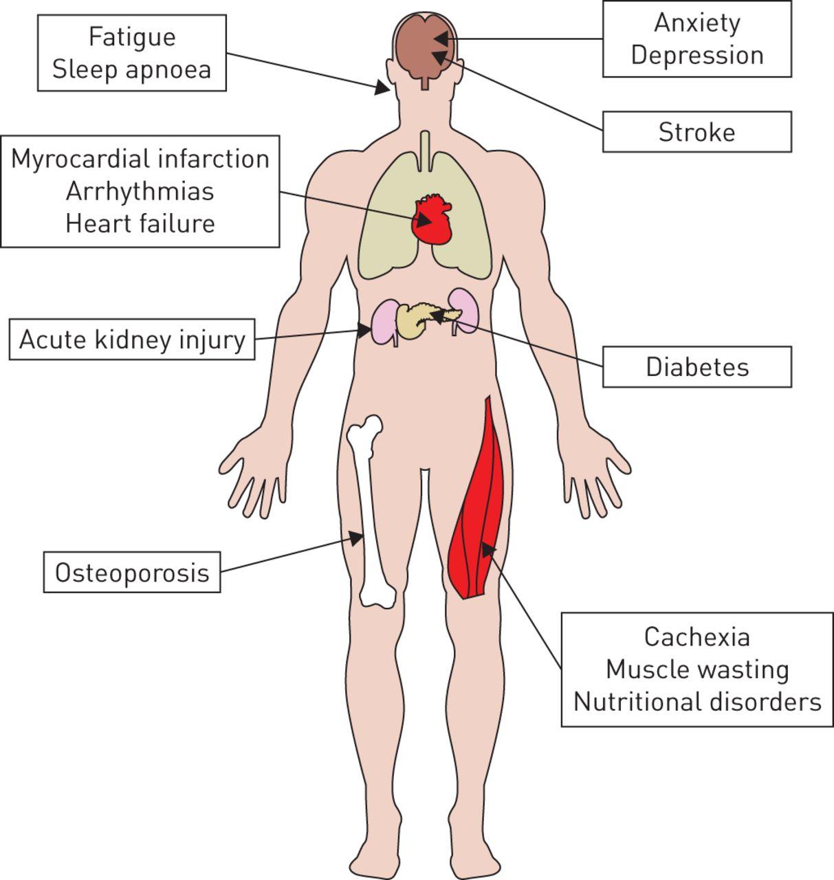 Pulmonary Rehabilitation And Severe Exacerbations Of Copd