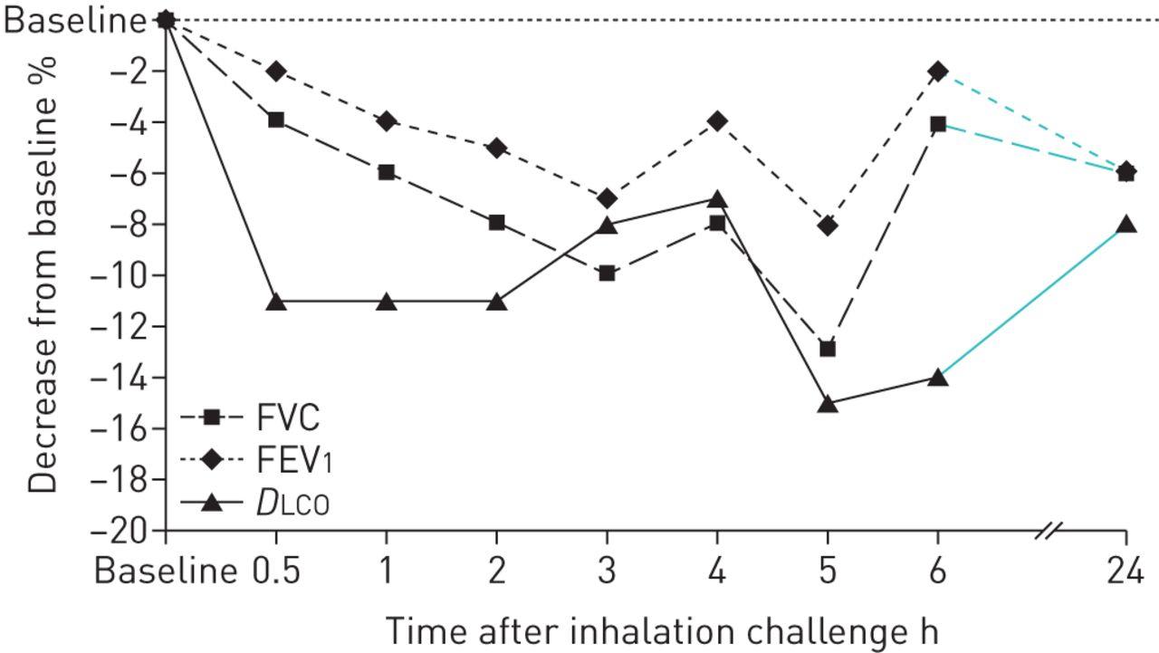 Hypersensitivity pneumonitis in fish processing workers